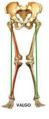 Genu valgo: lesión frecuente en amazonas